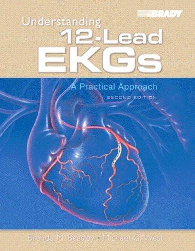 Understanding 12-Lead Ekgs