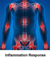 Shop Inflammation Support Products At AACStore.Com