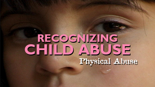 Recognizing Child Abuse: Physical Abuse