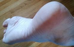 Cracked Heel Testimonial - Tallow Balm