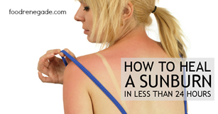 How To Heal a Sunburn In Less Than 24 Hours