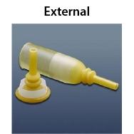 external.jpg