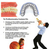 Orthodontic Braces Lip Protector Shield (Upper and Lower)