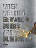 Burns and Blindness Safety Posters in ENGLISH  pic 1