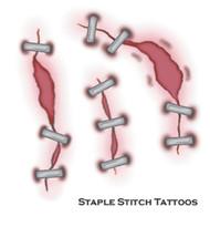 Tattoo Staple Stitch Fx