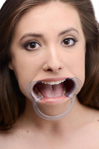 Cheek Retractor Dental Mouth Gag