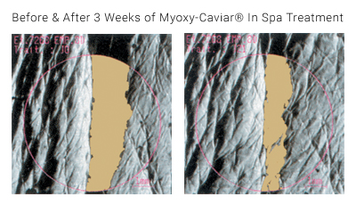 Before and After 3 Weeks of Myoxy-Caviar® In Spa Treatment